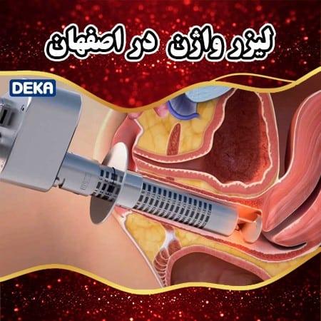 لیزر واژن در اصفهان