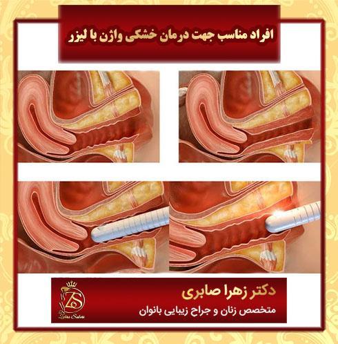 افراد مناسب جهت درمان خشکی واژن با لیزر
