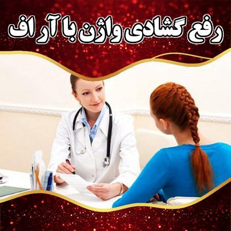 رفع گشادی واژن با آر اف