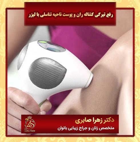 رفع تیرگی کشاله ران و پوست ناحیه تناسلی با لیزر