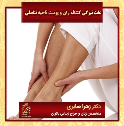 علت تیرگی کشاله ران و پوست ناحیه تناسلی
