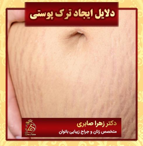 دلایل ایجاد ترک پوستی