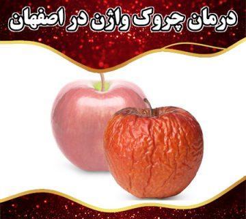 درمان چروک واژن در اصفهان