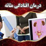 درمان افتادگی مثانه