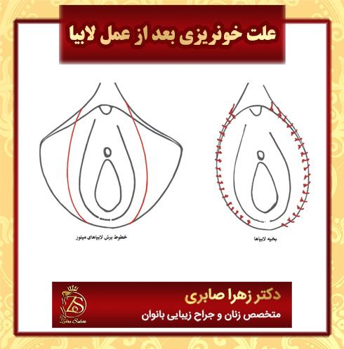 علت خونریزی بعد از عمل لابیا