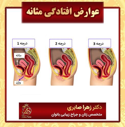 عوارض افتادگی مثانه